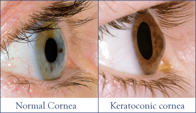 A normal cornea (left) and a cornea with Keratoconus (right).